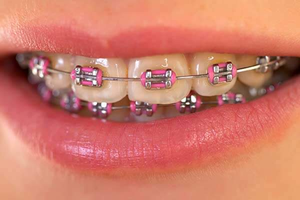 Can You Hook Up With Braces